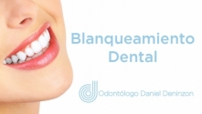 Teachlr.com - Blanqueamiento Dental